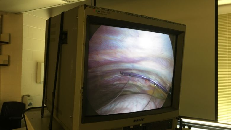 View from fiber-optic camera inserted into chest